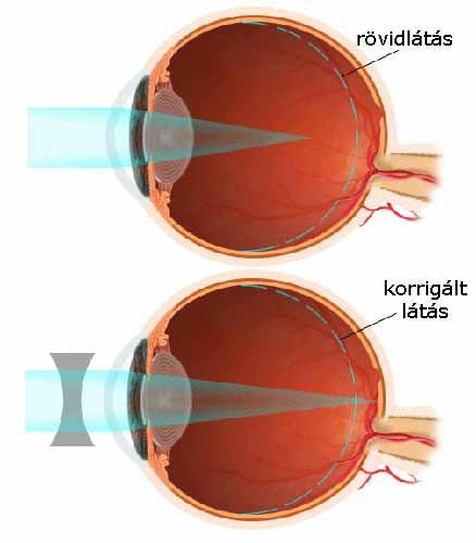 Enyhe myopia kezelés