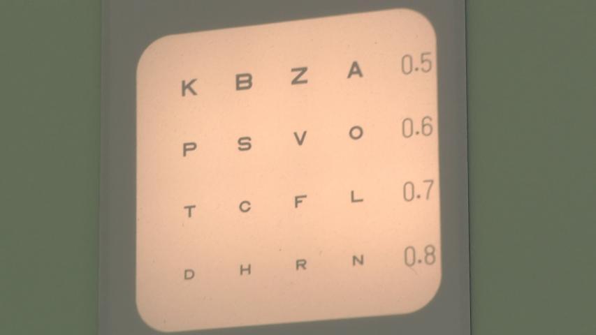 látás agy osztály hogyan lehetne sokat javítani a látásán