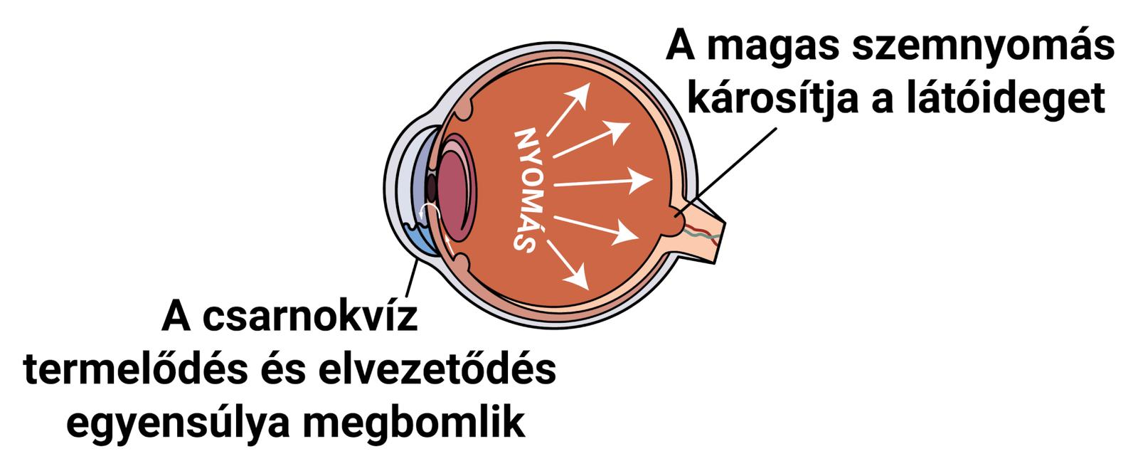 hogyan lehet megakadályozni a látás csökkenését A vizin befolyásolja a látást