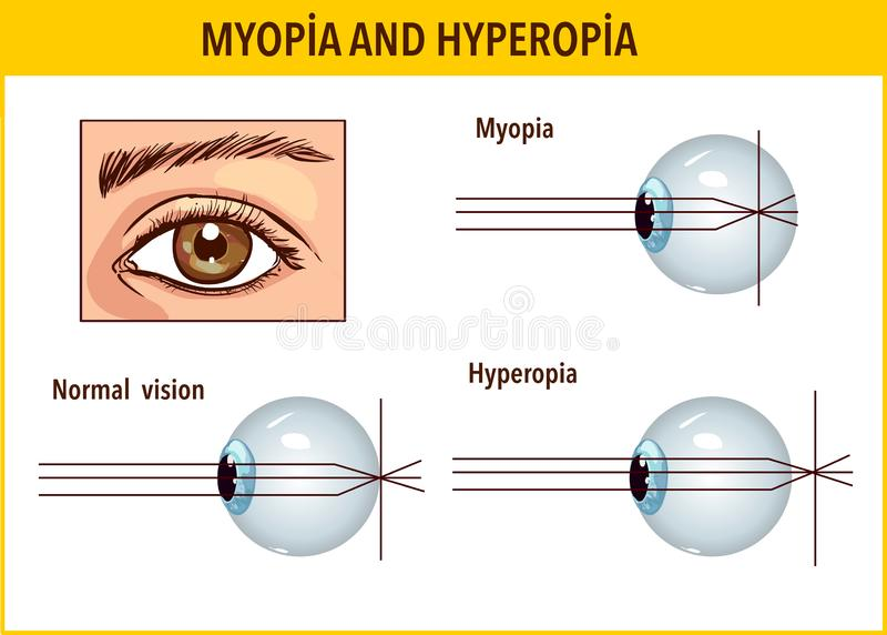 myopia hyperopia astigmatism és kezelésük)