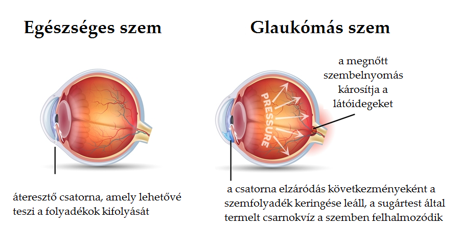 Rövid távú látási zavarok