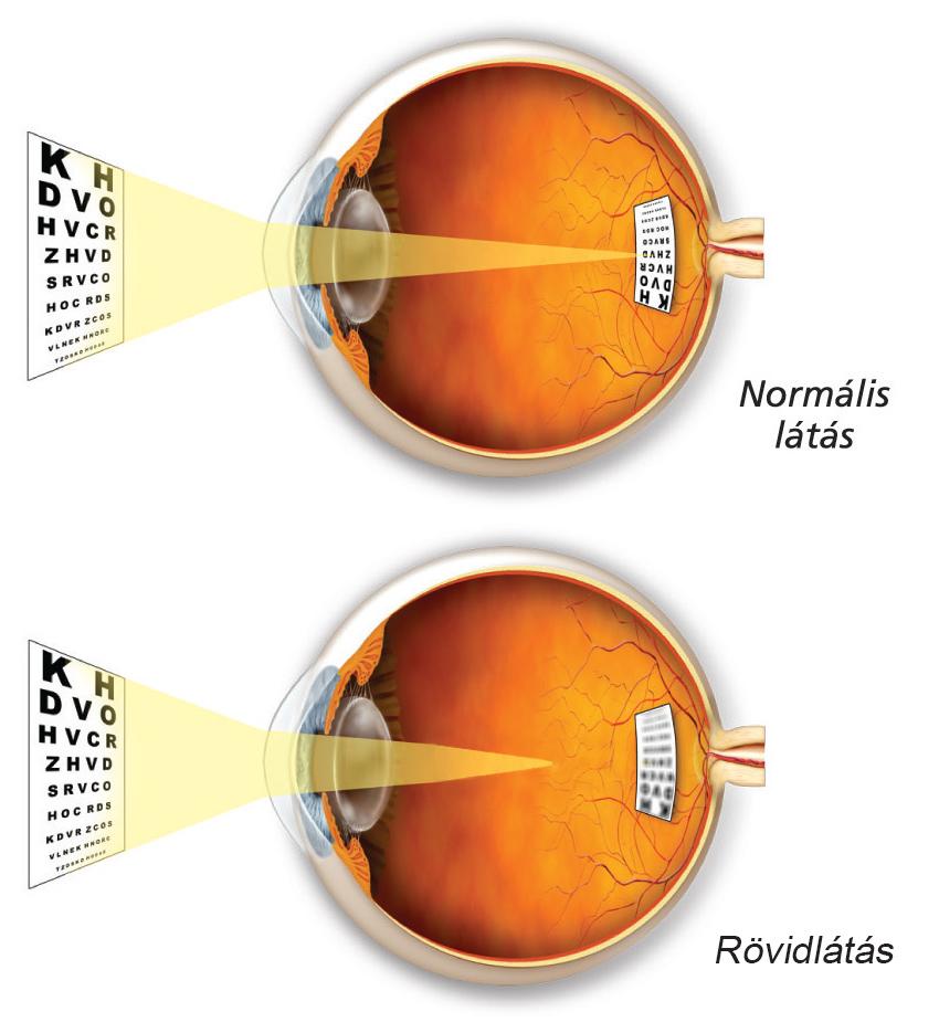 háló a látás javításához