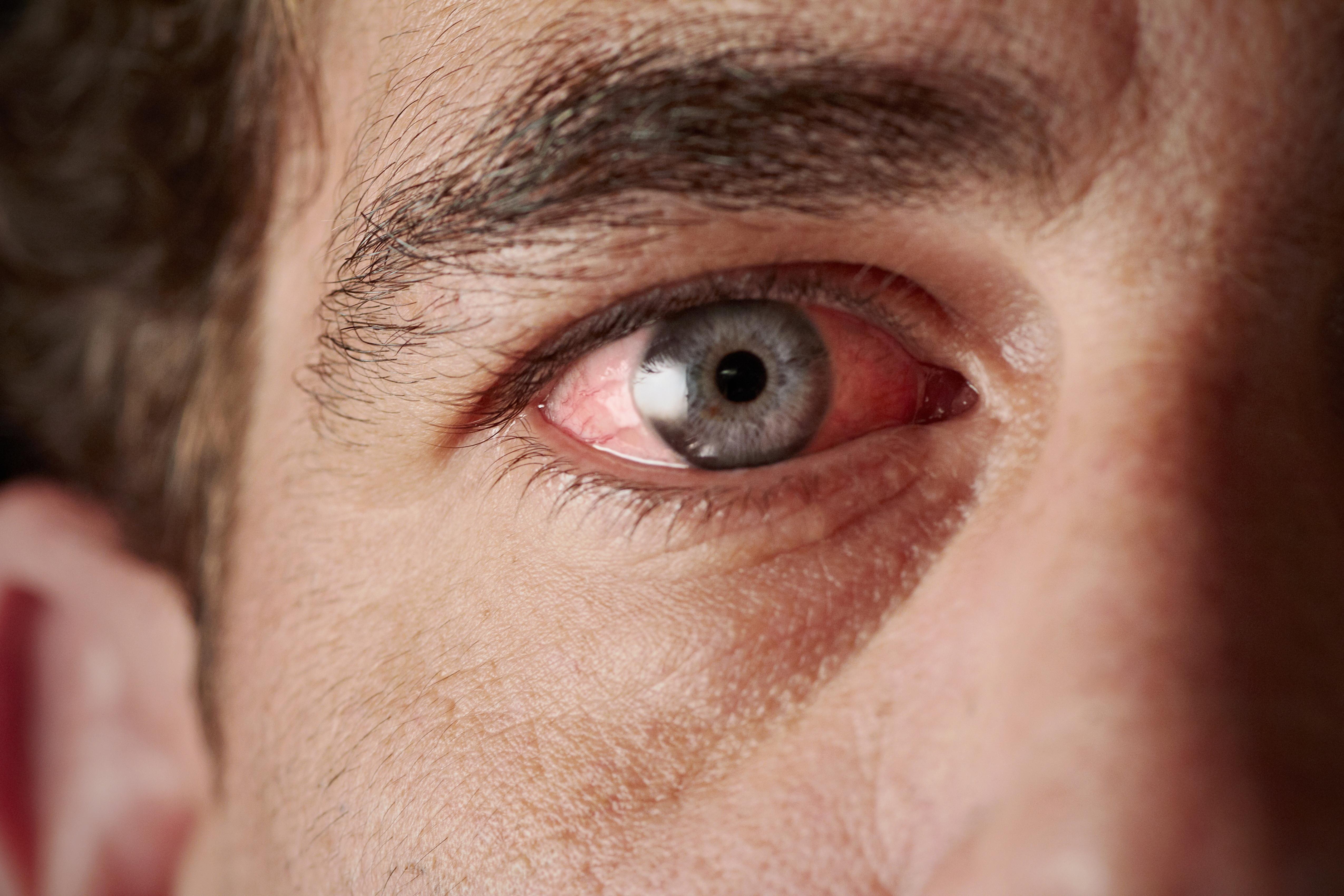 miért rossz az egyik szemben a látás