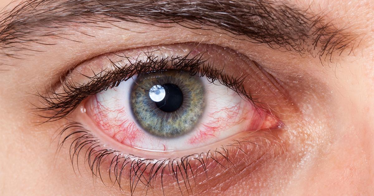 szürkehályog eltávolítás után romlott a látás
