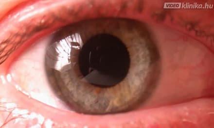 szürkehályog eltávolítás után a látás nem javult
