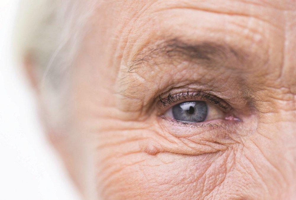 multicarotin és látás felesleg és látás