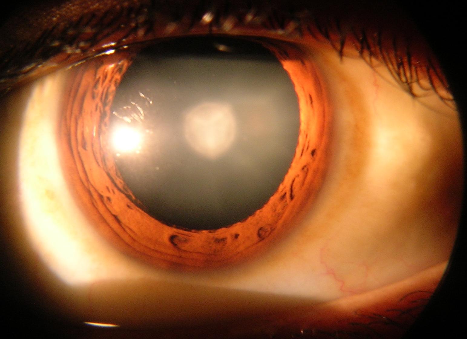 látás helyreállítása Bates asztal glaukóma szemlátás