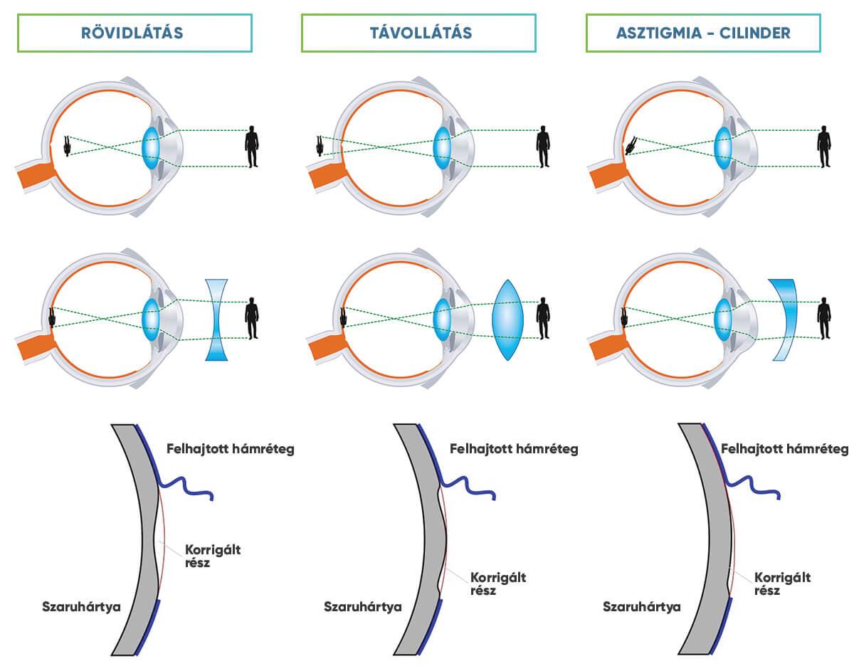magas rövidlátás és szürkehályog a szem látása normális