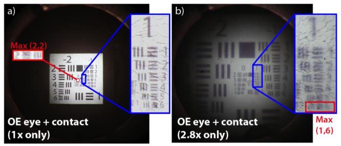 javítsa a látását 3 óra alatt szem myopia képzése