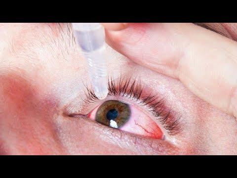 szemészet: nystagmus kezelése